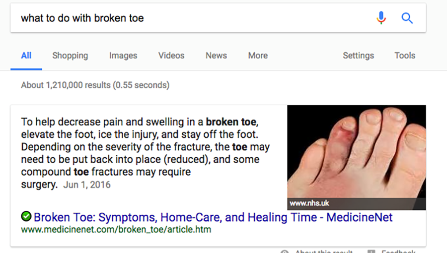 what to do with broken toe google search